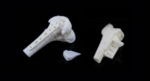 AAOS: Materialise Launches 3D-Printed, Patient-Specific Osteotomy Guides