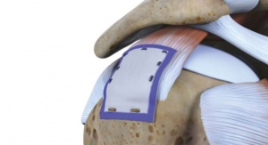 AAOS: Rotation Medical Bioinductive Implant Induces New Tissue Formation