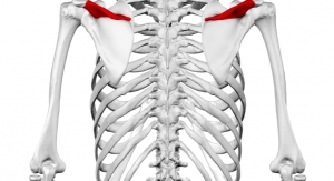 AAOS: Caution Against Bone Morphogenetic Proteins in Children