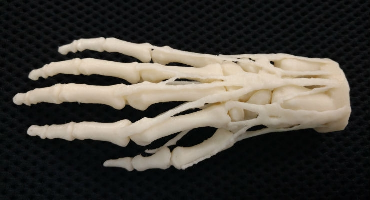 3D printed hand model for teaching, diagnosis, procedural planning. Digital file is a VA resource, hospitals can request models 3D printed on network printers for shipment. (Credit: Business Wire)