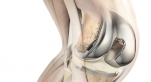 AAOS: New Report Demonstrates Clinical, Economic Value of ATTUNE Knee System