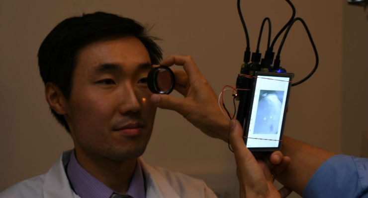 Dr. Bailey Shen, a resident in the department of ophthalmology and visual sciences in the UIC College of Medicine, has his retina photographed using a camera based in the Raspberry Pi 2 computer. (Credit: Bailey Shen)
