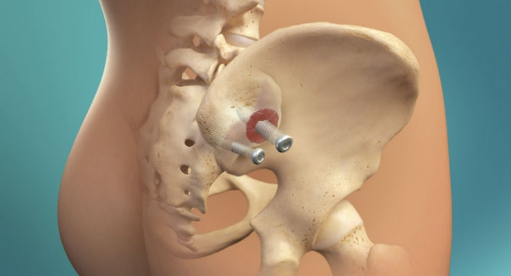 2-Year CT Fusion and Clinical Results for SImmetry SI Joint Fusion with Decortication