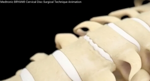 Animation: Medtronic Bryan Cervical Disc Surgical Technique