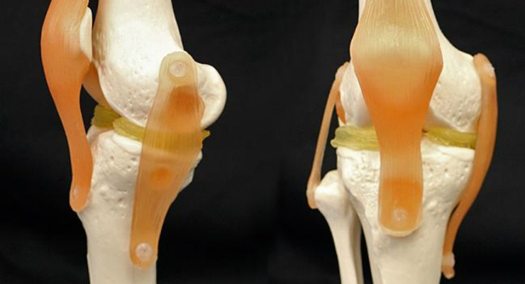 A cartilage-mimicking material created by researchers at Duke University may allow surgeons to 3D print meniscus implants or other replacement parts that are custom-shaped to each patient