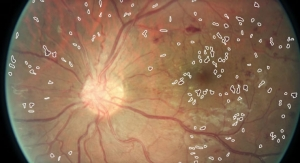 IBM Machine Vision Spots Diabetic Eye Disease Early with Deep Learning