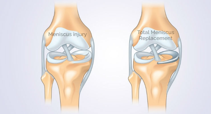 Orthonika Accelerates Development Of Total Meniscus Replacement