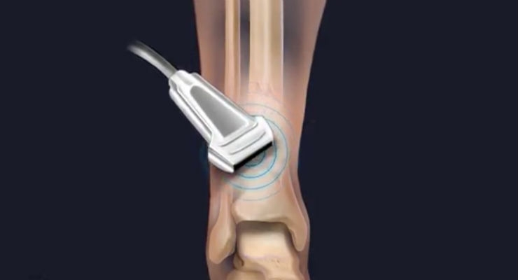 Injured Bones Repaired with Stem Cells, Gene Therapy, and Ultrasound