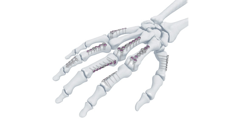 The Variable Angle Locking Hand System from DePuy Synthes features the company's proprietary Variable Angle Locking technology, which enables surgeons to adjust the screw's insertion angle to match the patient's anatomy and fracture pattern. Image courtesy of DePuy Synthes.