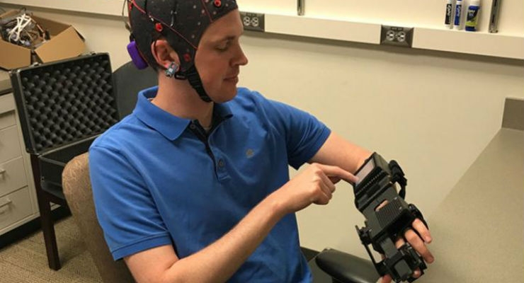 Medical resident Jarod Roland, M.D., tries out a device that detects electrical activity in his brain and causes his hand to open and close in response to brain signals. A new study shows that this device can help chronic stroke patients recover some control over their paralyzed limbs. Image courtesy of Leuthardt lab.