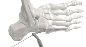 Paragon 28 Launches Screw and Instrumentation System for Jones Fractures