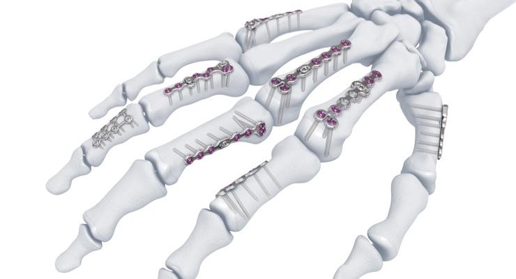 The Intricacy of Extremity Anatomy