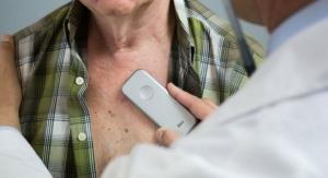 Smart Heart Monitor Keeps the Cardiologist a Heartbeat Away