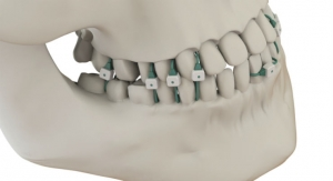 Summit Medical Launches Non-Invasive Jaw Fixation Device