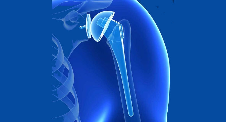 Asia-Pacific Shoulder Replacement Market to Hit $95.8 Million by 2023