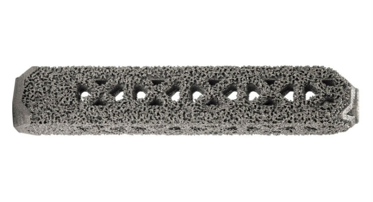 FDA Clears First 3D Printed Titanium SI Implant
