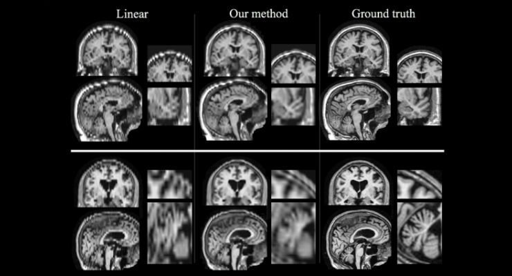 Artificial Intelligence Boosts Quality of Stroke MRI Scans