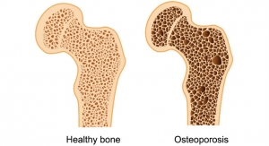 Awareness, Adherence Key to Improved Osteoporosis Care