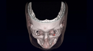 Magnetic Implants Used to Treat