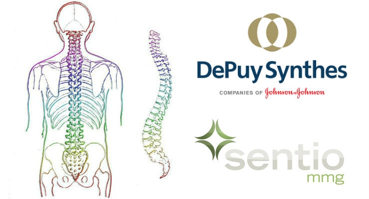 DePuy Synthes Buys Sentio to Broaden Reach in Minimally Invasive Spine