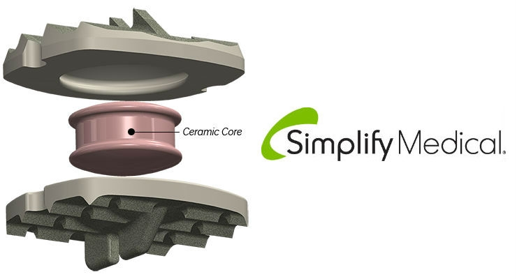 Two Simplify Disc U.S. pivotal trials are currently enrolling. Image courtesy of Simplify Medical.