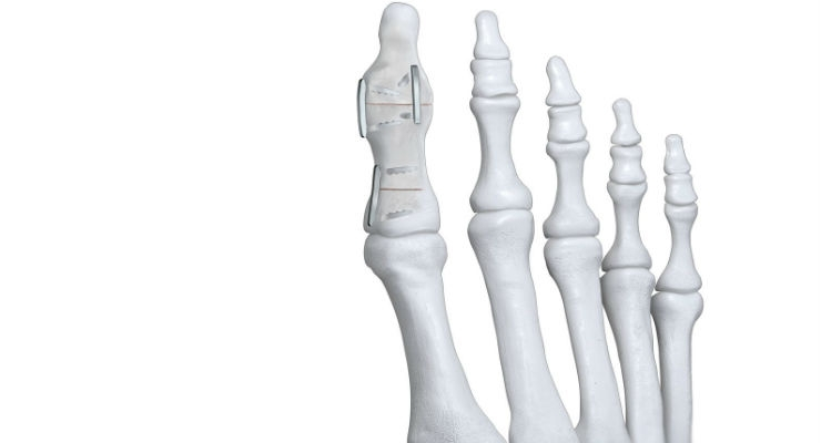 269b157701b Paragon 28 Launches Nitinol Staple System For Fracture   Osteotomy Foot  Fixation - Covering the specialized field of orthopedic product development  and ...