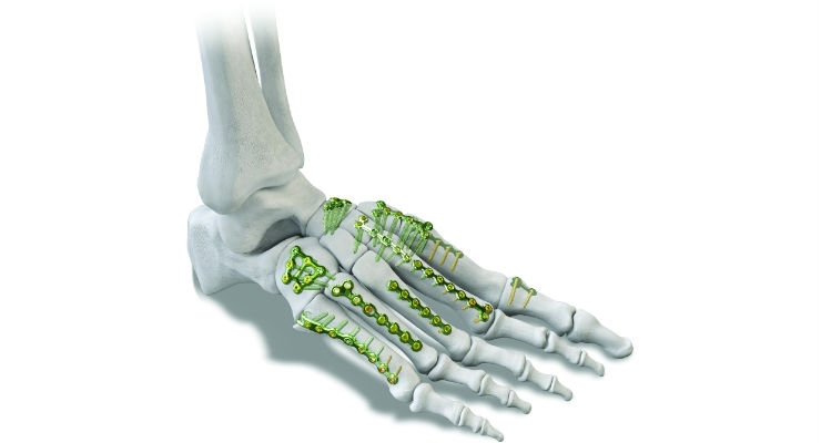 Rising Stars: Emerging Orthopedic Device Companies