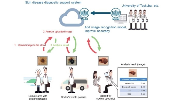 Kyocera-University Collaboration Working on AI-Digital Skin Cancer Analysis Tool