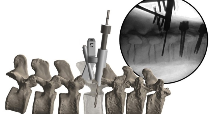 FIREFLY Pedicle Screw Navigation Guide.