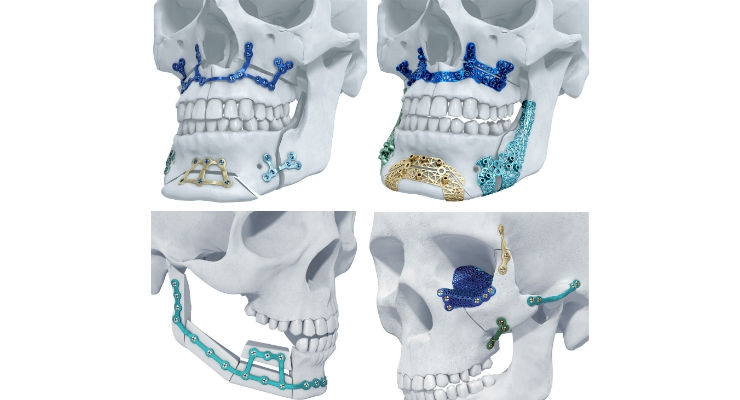 TRUMATCH Titanium 3D-Printed Implants