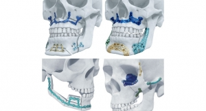 DePuy Synthes Launches 3D-Printed Titanium Facial Reconstruction Implants in U.S.