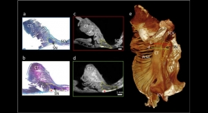 Patients to Benefit from New 3D Visualizations of the Heart