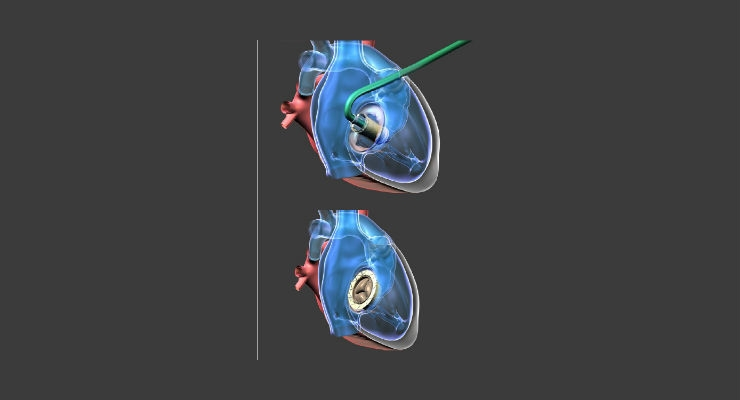Long and Short Axis TEE views of the Atrioventricular Valved Stent implanted in the Tricuspid Valve of beating heart of Swine (Annulus Diameter = 41 mm). Image courtesy of NaviGate Cardiac Structures.