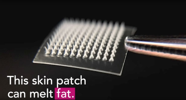 Microneedle Skin Patch Could Dissolve 'Love Handles'