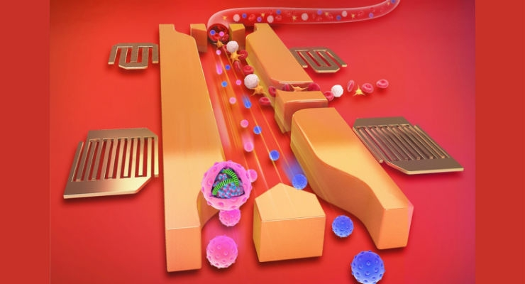 Blood Testing via Sound Waves Could Replace Some Tissue Biopsies