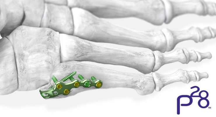 Paragon 28 Launches 5th Metatarsal Fracture Specific Plating System