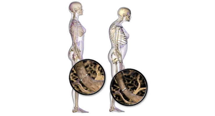 An illustration of the effects of osteoporosis on the body.