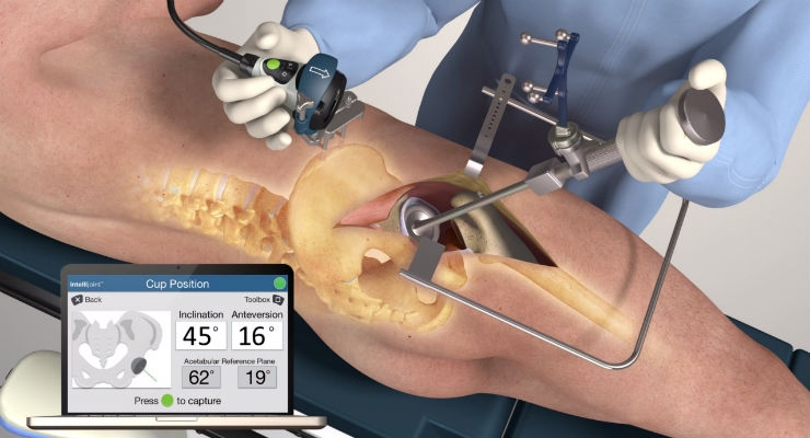 Intellijoint Surgical Receives CE Mark for intellijoint HIP