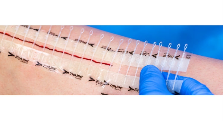 Zip Surgical Skin Closure Reduces Post-Discharge Costs, Clinic Calls for TKA
