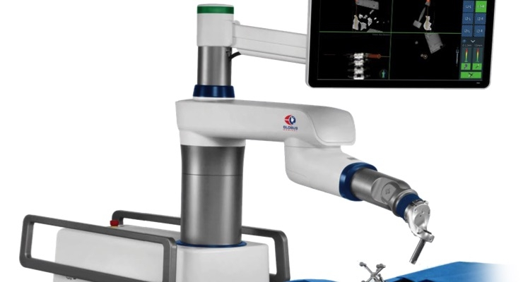 ExcelsiusGPS provides real-time visualization of instrument positioning and screw placement with respect to patient anatomy and closes the loop for the robotic guidance. Image courtesy of Globus Medical.