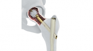 DePuy Synthes Launches New System Designed to Enhance Implant Fixation for Hip Fracture Patients