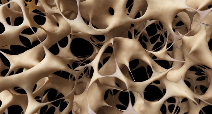 Cross-section of bone tissue. Image courtesy of the National Osteoporosis Foundation.