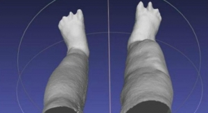 Portable 3D Scanner Assesses Patients with Elephantiasis