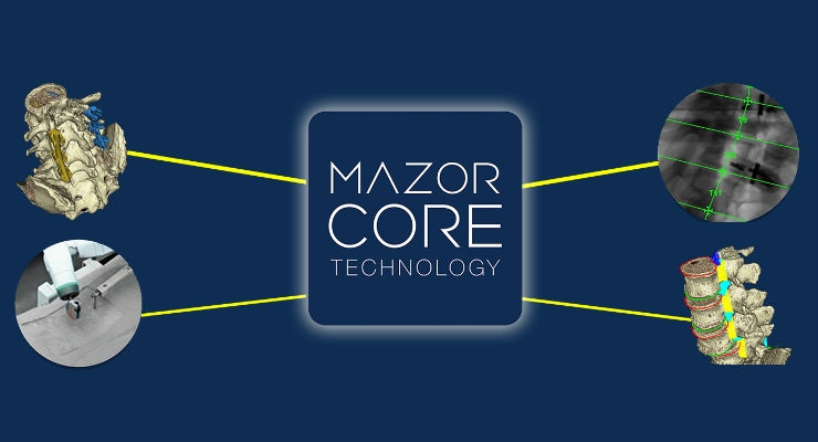 NASS News: Mazor Robotics Presents First Prospective Study of Robotic-Guided Spine Surgery