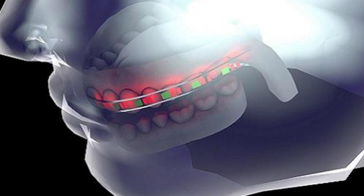 Flexible Batteries a Highlight for Smart Dental Aids