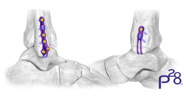 Paragon 28 Adds Hook Plates to Gorilla Ankle Fracture Plating System
