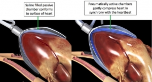 CorInnova Awarded Seminal Patent for Minimally Invasively-Delivered Soft Robotic Heart Device