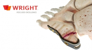 Wright Medical Launches ORTHOLOC 3Di Small Bone Plating System