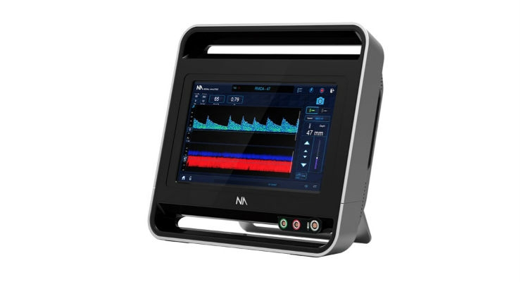 Data Shows Portable Transcranial Doppler Technology Can Accurately Measure Early Stroke