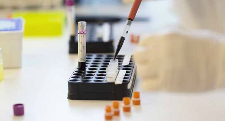 Blood Test Can Diagnose Lymphoma & Melanoma